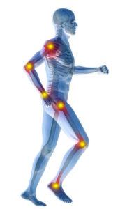 Glucosammina e Condroitina per la prevenzione dell'artrosi e nella cura dell'artrite